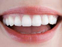 Bệnh răng miệng ở trẻ em