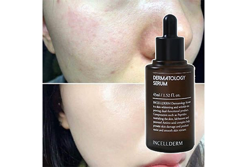 Công dụng của serum dưỡng da Incellderm Dermatology-1