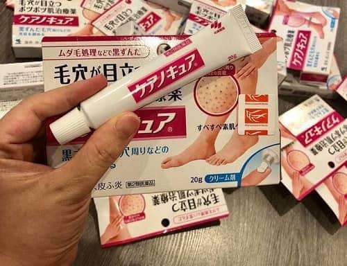 Kem trị viêm nang lông Kobayashi có tác dụng gì-1